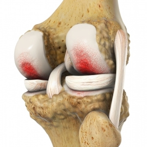 Osteoarthritis-Cartilage-Disorders